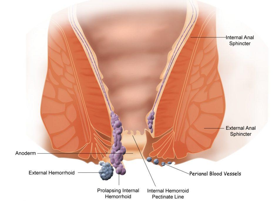 Hemoroide, nos conseils pour parvenir à améliorer les symptômes